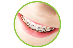 Braces from a friendly Orthodontist