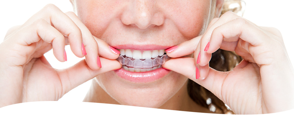 WB Orthodontics - Invisalign Clear Braces